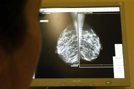 A woman undergoes a mammograms, a special type of X-ray of the breasts, which is used to detect tumours as part of a regular cancer preventi