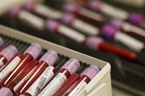Blood samples are pictured at the Swiss Laboratory for Doping Analysis in Epalinges near Lausanne in this July 15, 2008 file photo.