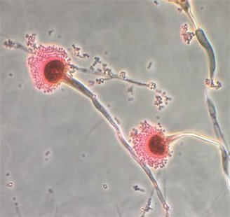 Aspergillus, a type of fungi, is seen in this handout image from the Centres for Disease Control, October 13, 2012. REUTERS/Centres for Dise
