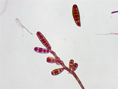 Exserohilum rostratum, a type of fungi, is seen in this handout image from the Centres for Disease Control, October 13, 2012. REUTERS/Centre
