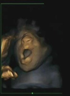 A 4D ultrasound scan shows a foetus yawning in the womb during a study by Durham and Lancaster Universities and released in Durham, northern