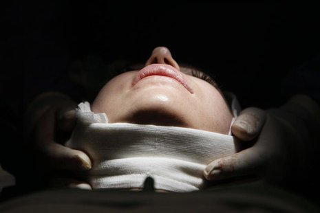 A woman lies on an operating table during a facelift surgery at a private plastic surgery clinic in Budapest, March 1, 2012. REUTERS/Bernade