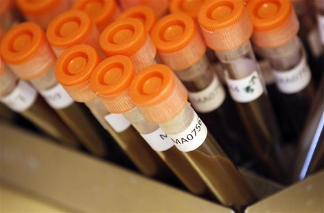 Test tubes filled with samples of bacteria to be tested are seen at the Health Protection Agency in north London in this March 9, 2011 file