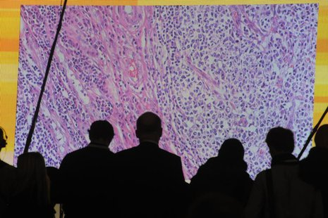 Cancer cells are seen on a large screen connected to a microscope at the CeBit computer fair in Hanover, March, 6, 2012. REUTERS/Fabian Bimm