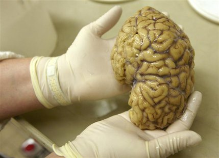 A laboratory assistant holds one hemisphere of a healthy brain in the Morphological unit of psychopathology in the Neuropsychiatry division