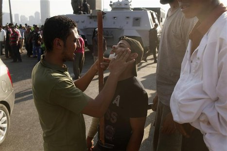 An opponent of deposed President Mohamed Mursi, dresses the wound of another opponent injured in Monday's clashes with pro-Mursi protesters,