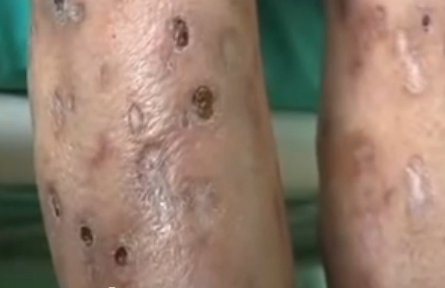 Effects of the drug Krokodil seen on legs of a user. (Photo from: YouTube).